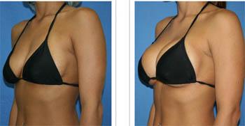 Chirurgia plastica di aumento di un forum del petto
