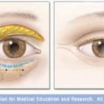 Intervento Chirurgico per eliminare le Borse sotto gli occhi